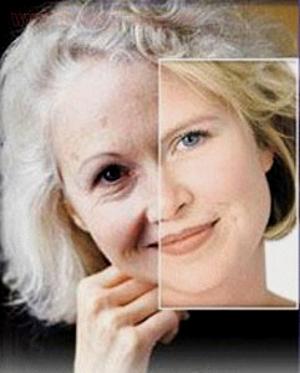 Типы старения (по И. И. Кольгуненко)
