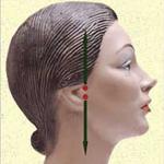 Коррекция овала лица. Часть 1